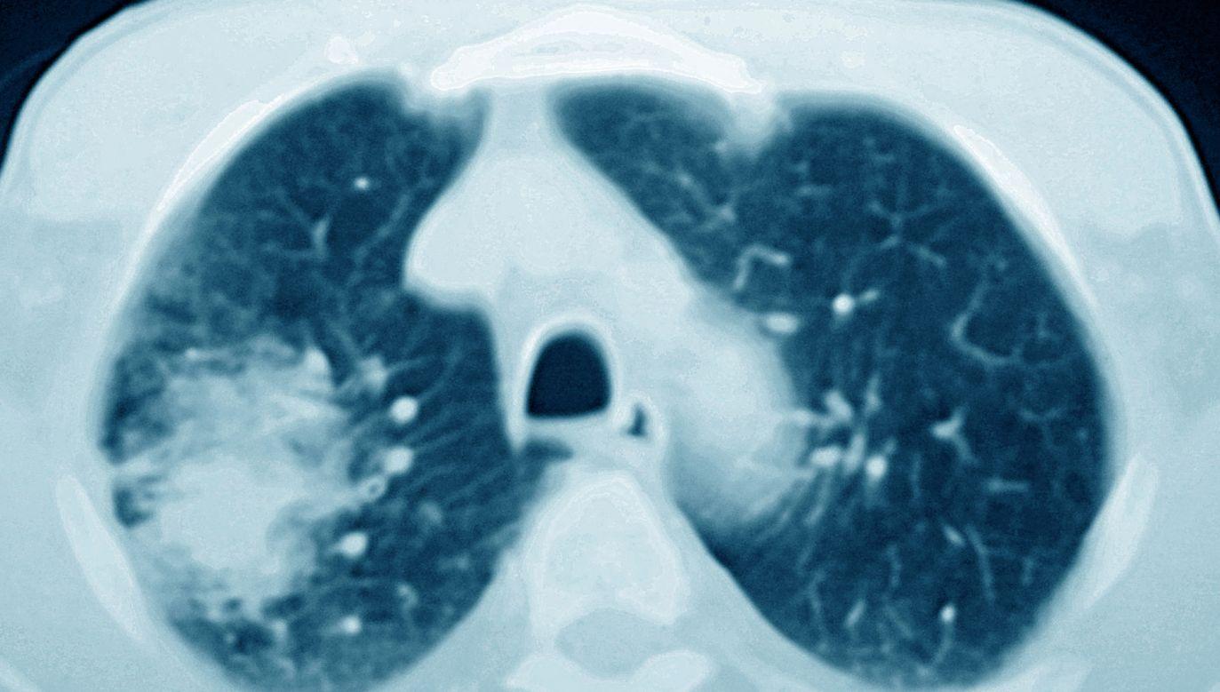 Według Światowej Organizacji Zdrowia (WHO), raka płuca w 2018 r. zdiagnozowano u 470 tys. Europejczyków, a 388 tys. zmarło z powodu tej choroby (fot. Cavallini James/BSIP/Universal Images Group via Getty Images)