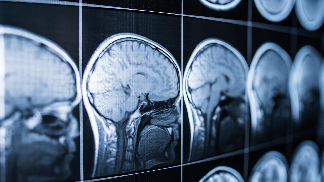 Układ po wszczepieniu do mózgu może wpływać na zachowanie (fot. SHutterstock/Jalisko)