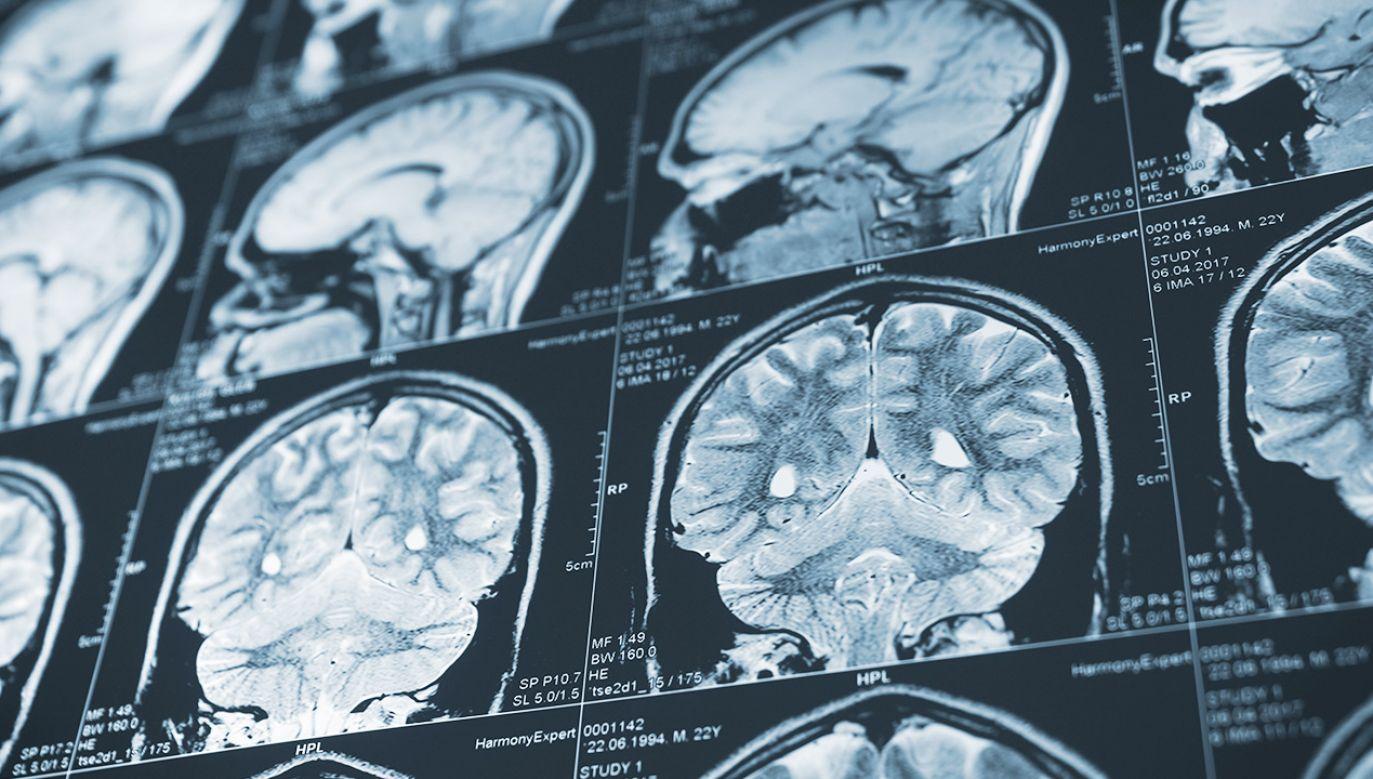Eksperci tłumaczą, jak pozbyć się mgły mózgowej (fot. Shutterstock)